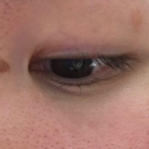 2週間後の目