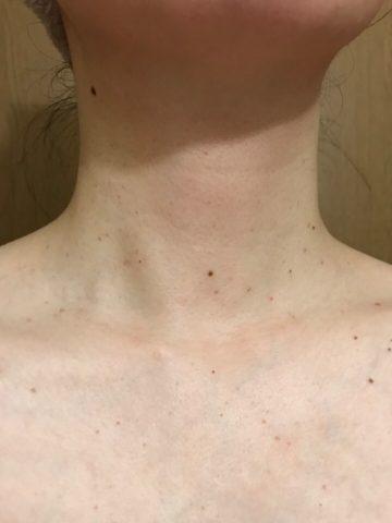 イボ治療後2週間後の首