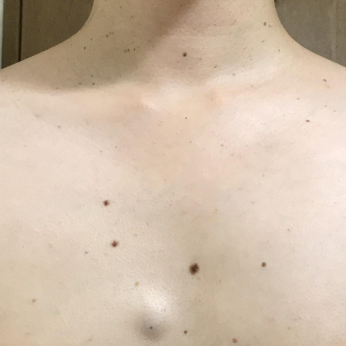 大きくなった粉瘤