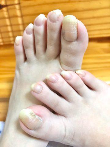 長い足の爪