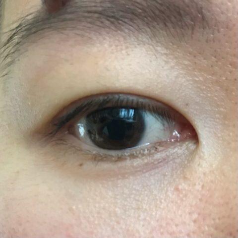目尻と目が下にあるシミ?点