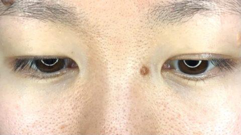まつげのある右目とない左目