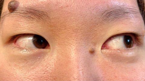 充血気味の目